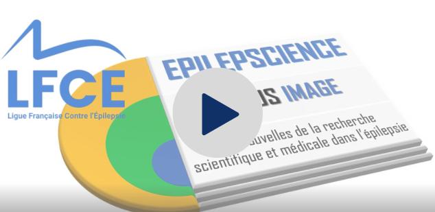 A écouter ! Podcast LFCE EPI-POD EPILEPSCIENCE S01E10